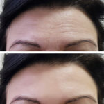 Forehead wrinkles reduced