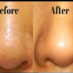 nose with black heads before and after microneedling